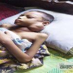 হিলিতে ক্যান্সার রোগে আক্রান্ত শিশু 'আমির হামজা' বাঁচতে চায়